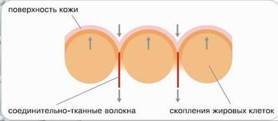 ЦЕЛЛЮЛИТ - откуда берется целлюлит
