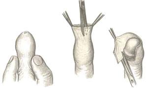 Циркумцизия - операция по обрезанию крайней плоти полового члена