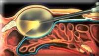 Щадящая хирургия - миниинвазивные операции - Урологический центр Niederberg