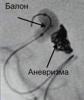 Баллон предотвращает выход спиралей в питающий сосуд