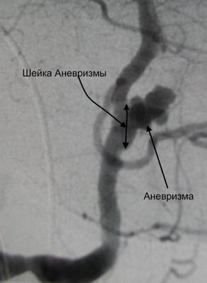 Аневризма с широкой шейкой - диаметр шейки равен или больше диаметра аневризмы