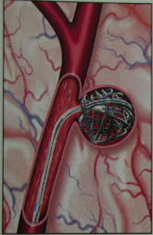 Микрокатетер введён в полость аневризмы и введена первая микроспираль