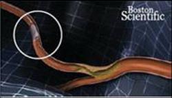 Кардиохирургический центр МЕДИЦИНА - Показания к установке коронарного стента