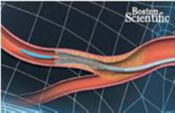 Кардиохирургический центр МЕДИЦИНА - После операции коронарного стентирования