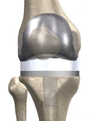 Эндопротез коленного сустава в госпитале Федеральной Таможенной Службы - Москва
