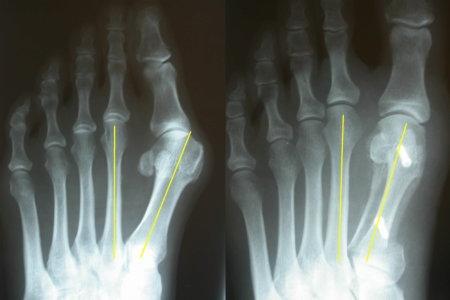 Деформации переднего отдела стопы - - лечение в травматолого-ортопедическом отделении Центрального клинического госпиталя ФТС России