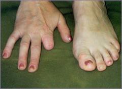Ампутация указательного пальца правой руки