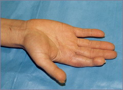 Результат пересадки пальца - хороший эстетический эффект, функция восстановлена