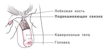 Удлинение пениса - Стандартная лигаментотомия