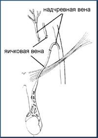 ВАРИКОЦЕЛЕ - Микрохирургическая реваскуляризация яичка