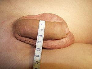 Увеличение пениса (утолщение) - вид до операции