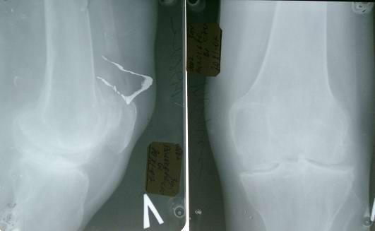 Эндопротезирование коленного сустава вид до операции