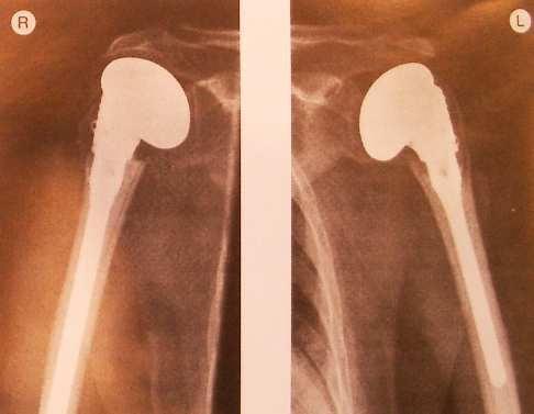 Эндопротезирование плечевого сустава - вид после операции