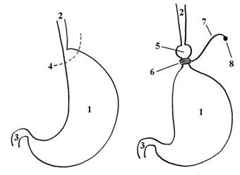Лечение ОЖИРЕНИЯ - бандажирование желудка - схема операции
