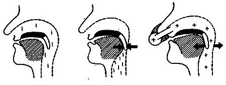 СИПАП ( СРАР ) - терапия - МЕХАНИЗМ ДЕЙСТВИЯ
