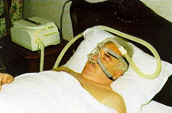 Проведение СИПАП ( СРАР ) - терапии
