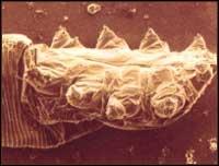 ДЕМОДЕКОЗ - EMODECOSIS OCULI - ресничный клещ