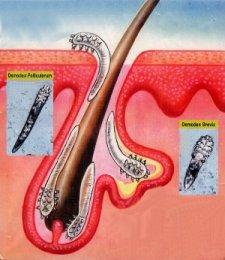Ресничный клещ обитает в глубине сальных и мейбомиевых желез в волосяных фолликулах человека
