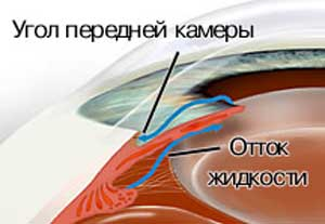 ГЛАУКОМА - путь оттока внутриглазной жидкости