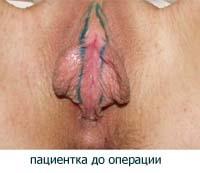 Половые губы - хирургическая пластика - вид до операции