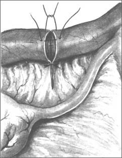 Пластика МАТОЧНОЙ ТРУБЫ - тубо-тубарный анастомоз (реконструкция маточной трубы в области истмического отдела)