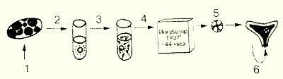 ЭКО - экстракорпоральное оплодотворение - IVF - In Vitro Fertilization