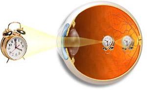 БЛИЗОРУКОСТЬ - изображение ПЕРЕД сетчаткой глаза