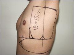 Разметка торакодорсального лоскута.