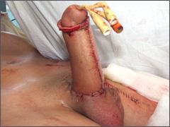 Фаллопластика лучевым лоскутом. Неофаллос после операции.