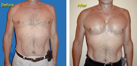 Пластика грудных мышц у мужчин
