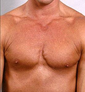 Пластика грудных мышц - до операции