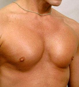 Пластика грудных мышц - после операции