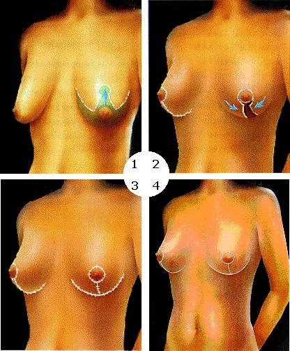 Подтяжка молочной железы - мастопексия
