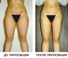 ЛИПОСАКЦИЯ - удаление излишков жира на теле
