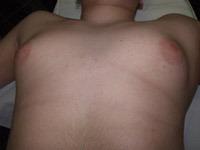 ГИНЕКОМАСТИЯ - хирургическое лечение ГИНЕКОМАСТИИ