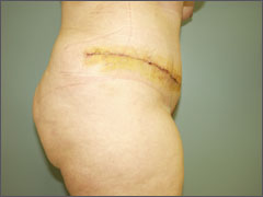 Абдоминопластика - вид после операции.