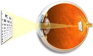 Здоровый глаз (нормальное зрение) - изображение предметов формируется точно на сетчатке