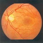 СЕТЧАТКА ГЛАЗА - Нормальное глазное дно