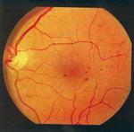 ДИАБЕТ - Васкулярная фаза препролиферативной диабетической ретинопатии. Микроаневризмы в макулярной и парамакулярной зонах.