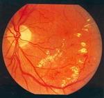 ДИАБЕТ - Экссудативная фаза препролиферативной диабетической ретинопатии. Отложения твердого экссудата, мелкие геморрагии, микроаневризмы.