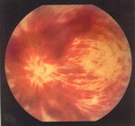 Тромбоз центральной вены сетчатки. Распространенный отек сетчатки; диск зрительного нерва и макулярная зона не дифференцируются. Множественные пламеобразные геморрагии.