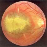 Геморрагическая отслойка пигментного эпителия у больного с центральной хориоретинальной дистрофией (ЦХРД)
